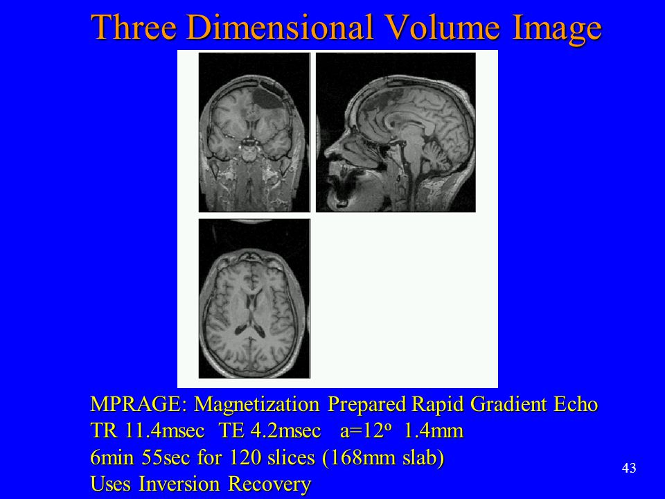 Three Dimensional Volume Image