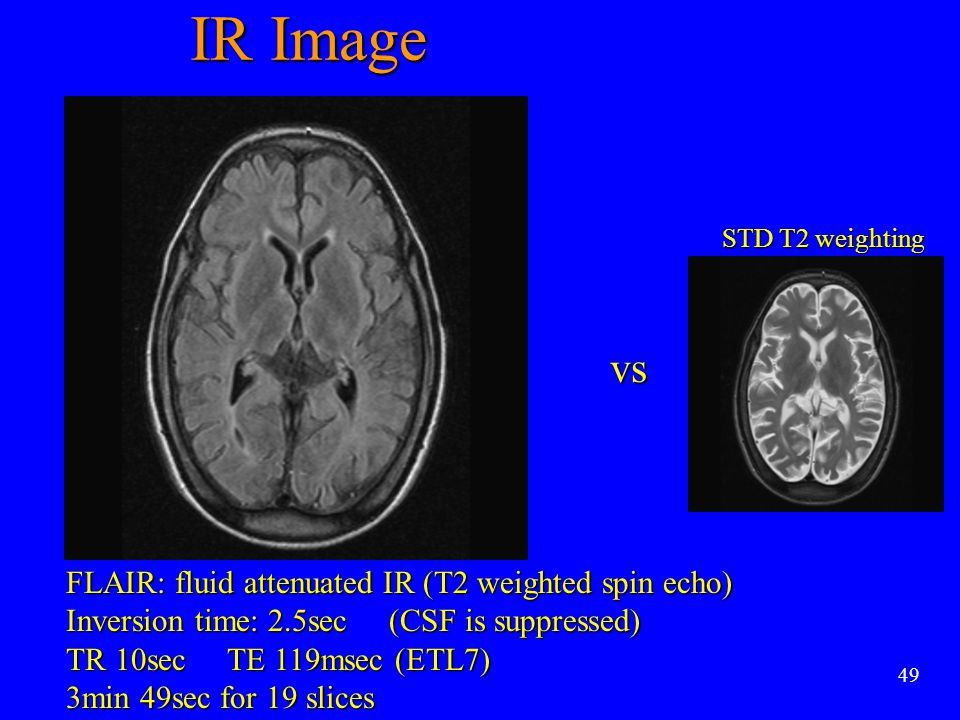 IR Image vs FLAIR: fluid attenuated IR (T2 weighted spin echo)