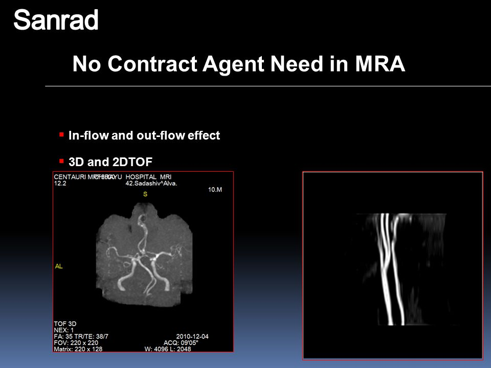 Sanrad No Contract Agent Need in MRA In-flow and out-flow effect