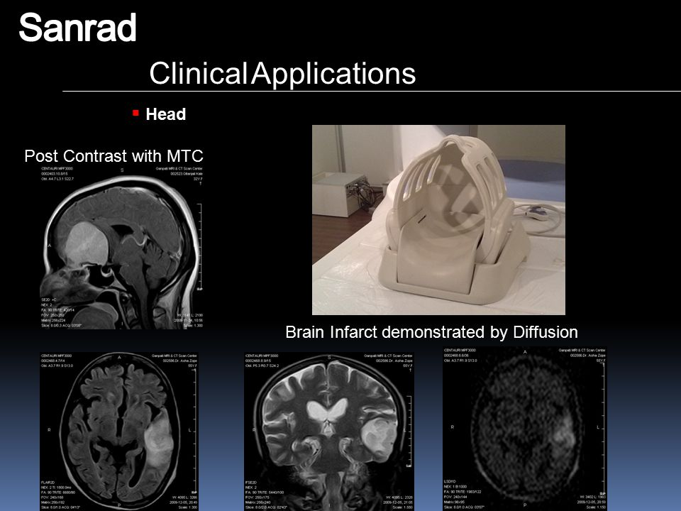 Sanrad Clinical Applications Head Post Contrast with MTC