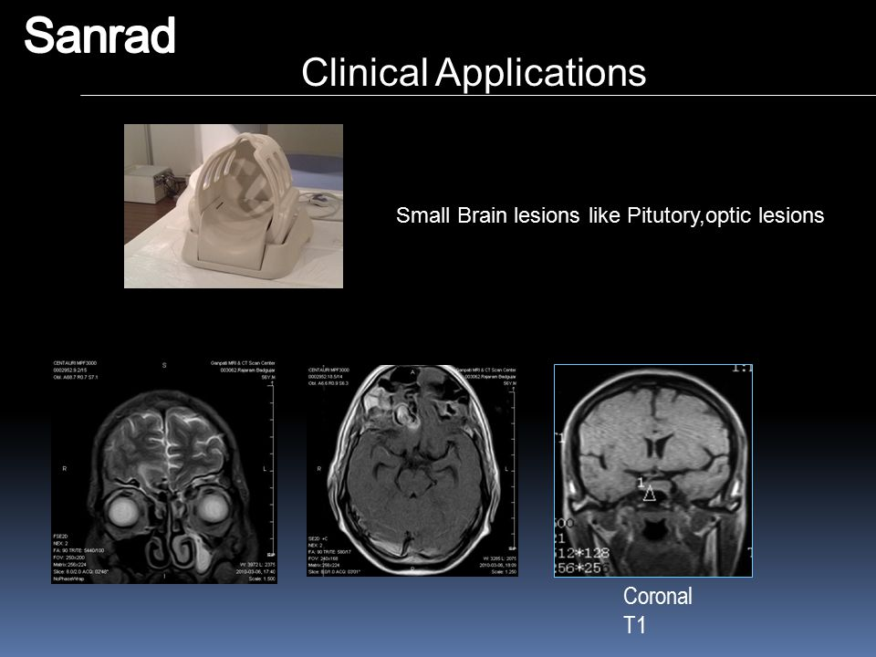 Sanrad Clinical Applications Coronal T1