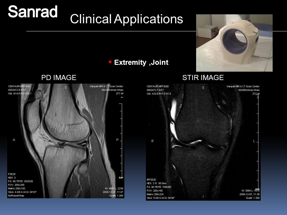 Sanrad Clinical Applications Extremity ,Joint PD IMAGE STIR IMAGE