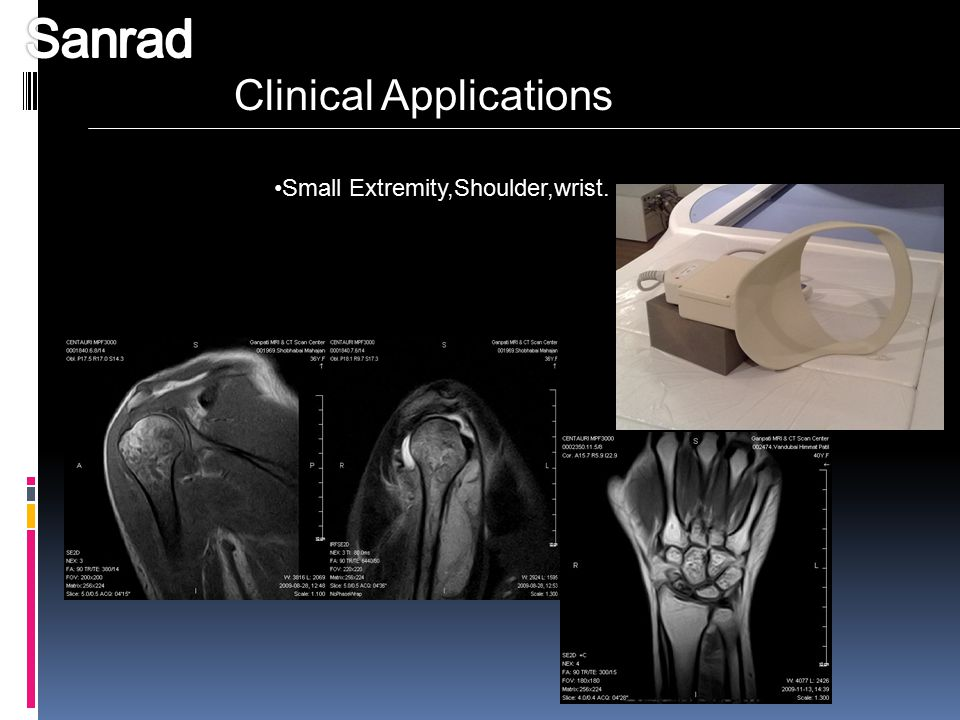 Sanrad Clinical Applications Small Extremity,Shoulder,wrist.