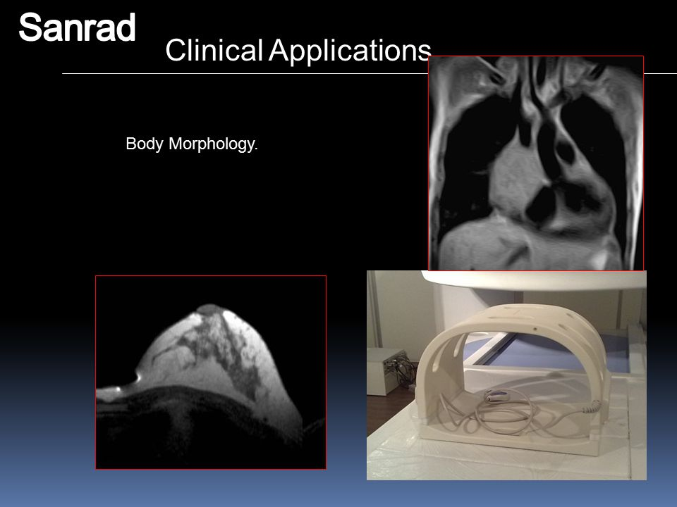Sanrad Clinical Applications Body Morphology.