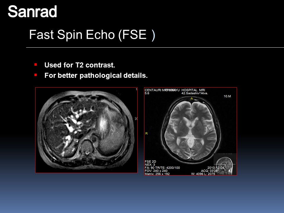 Sanrad Fast Spin Echo (FSE) Used for T2 contrast.