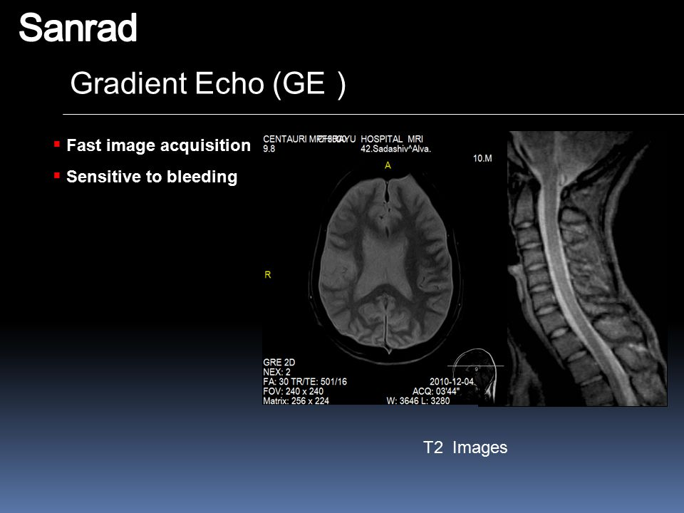 Sanrad Gradient Echo (GE) Fast image acquisition Sensitive to bleeding