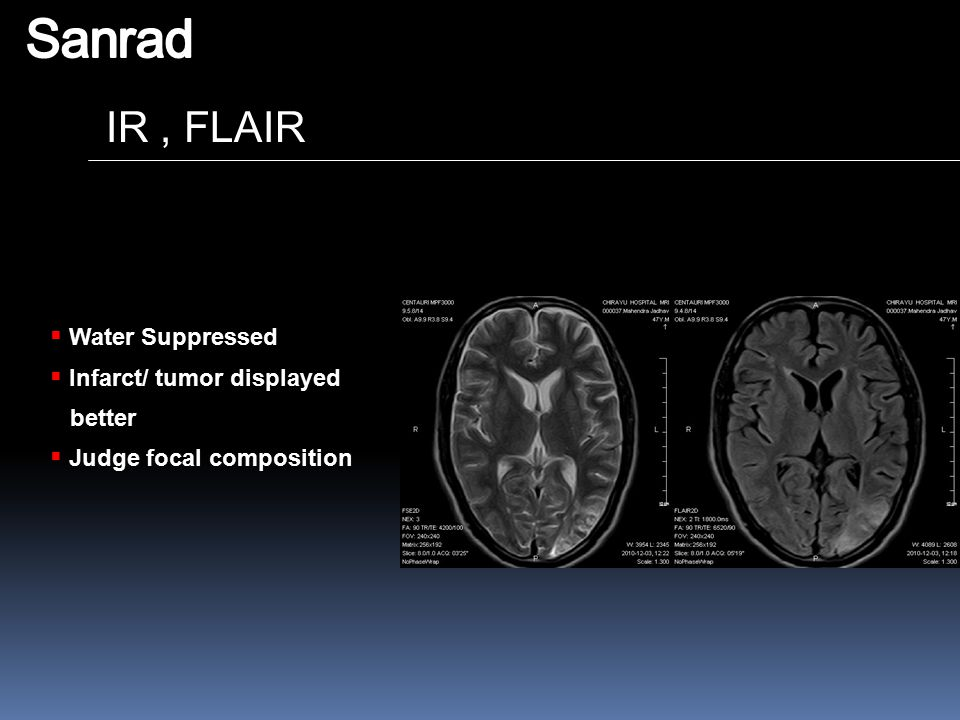 Sanrad IR , FLAIR Water Suppressed Infarct/ tumor displayed better