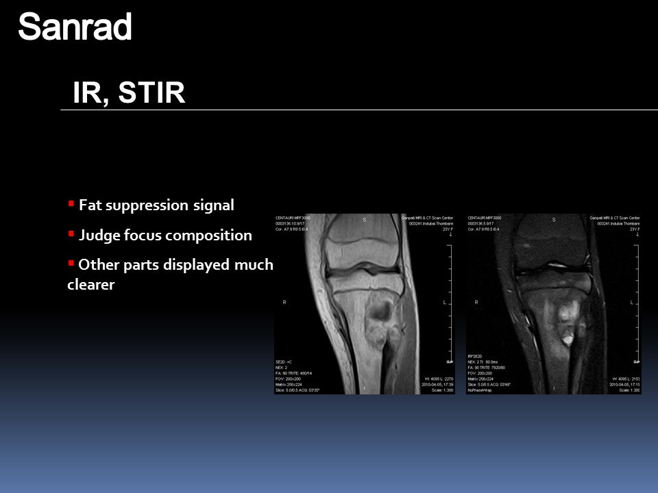 Sanrad IR, STIR Fat suppression signal Judge focus composition