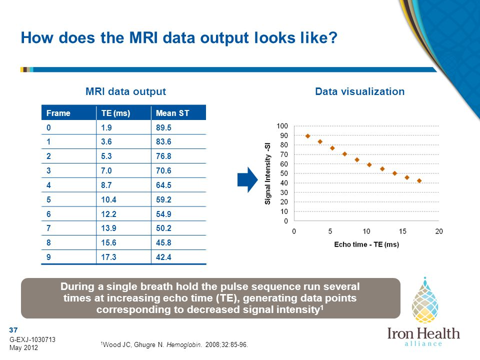 How does the MRI data output looks like