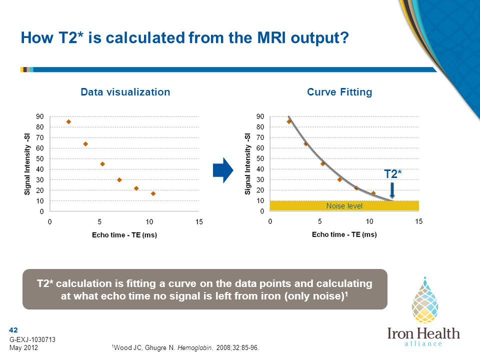 How T2* is calculated from the MRI output