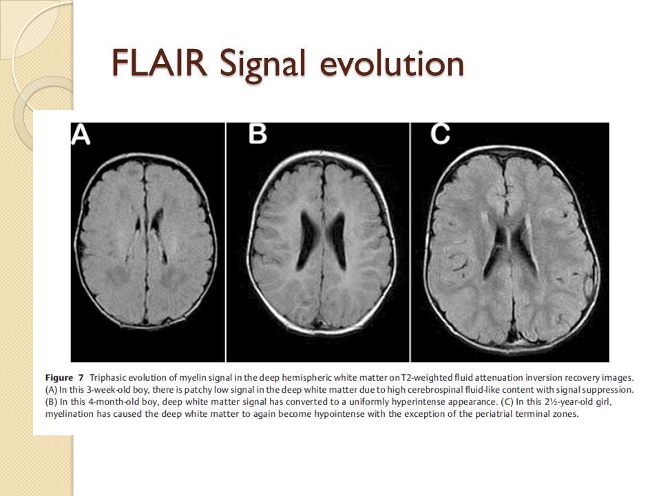 FLAIR Signal evolution