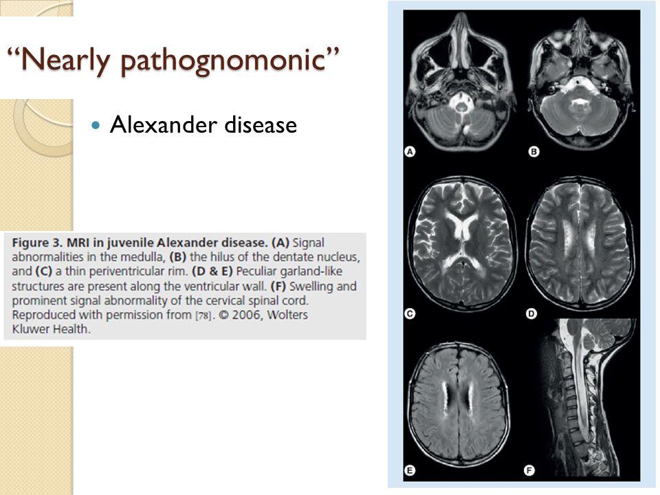 Nearly pathognomonic