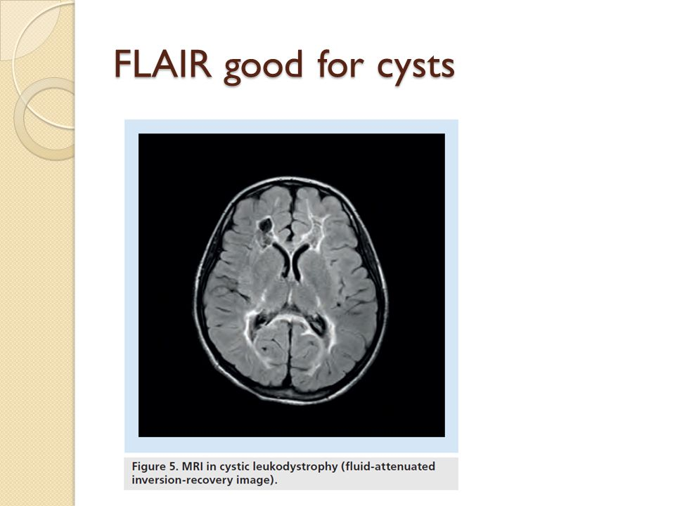 FLAIR good for cysts