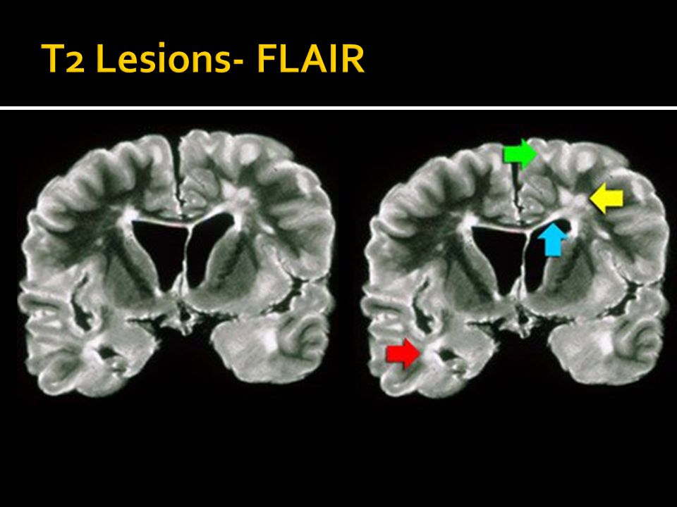 T2 Lesions- FLAIR Red arrow- involvement of the temporal lobe