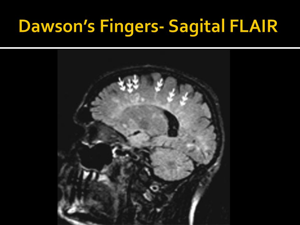 Dawson's Fingers- Sagital FLAIR