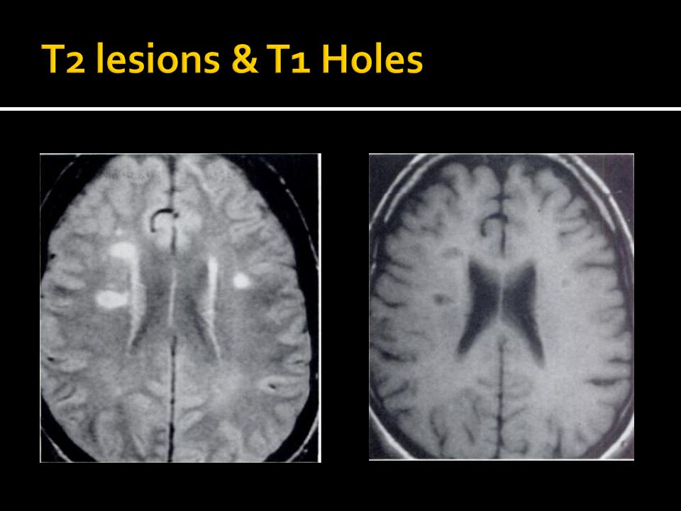T2 lesions & T1 Holes Fig 3 = Typical ovoid periventricular lesions of ms in 31 yo man with 10 yr h/o RR neurologic Sx.
