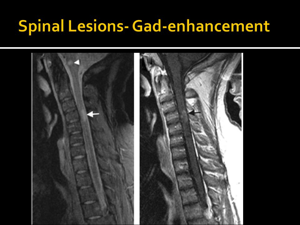 Spinal Lesions- Gad-enhancement