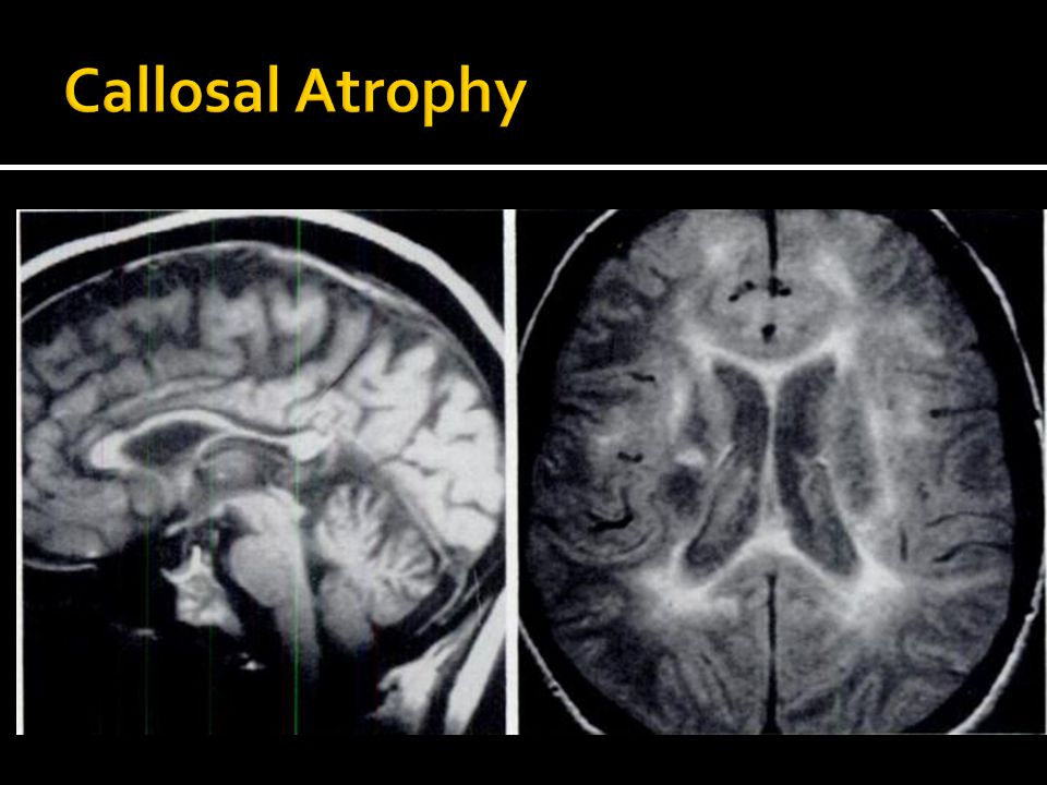 Callosal Atrophy Figure 4 = Callosal involvement with MS in 48 yo woman with clinically definite MS for 20 years.