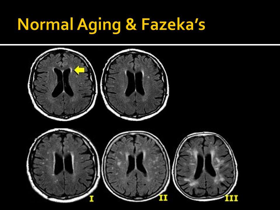 Normal Aging & Fazeka's