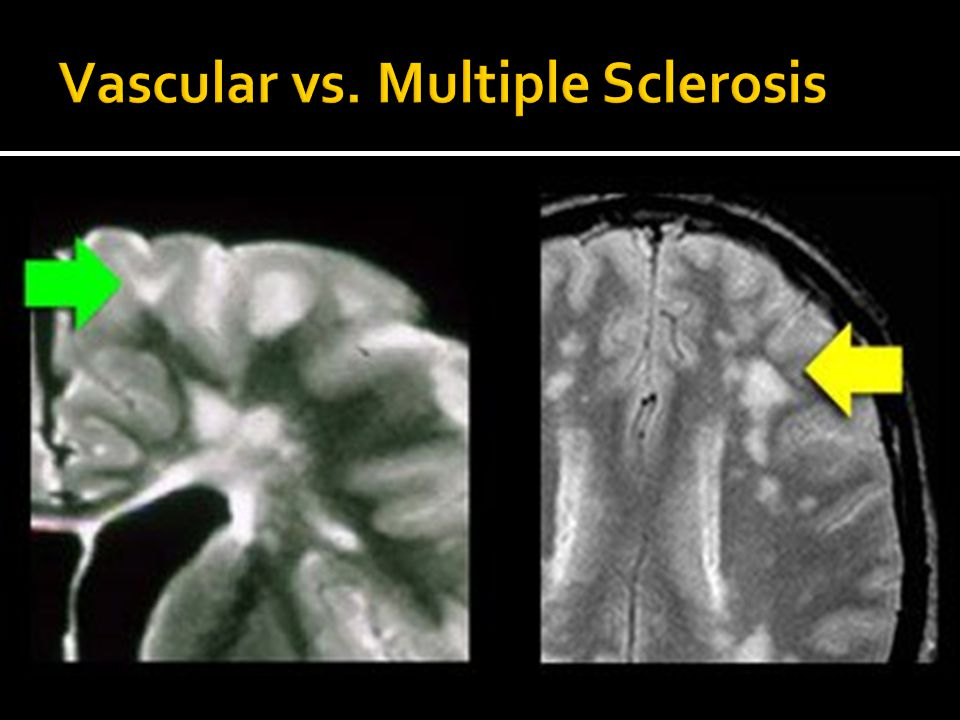 Vascular vs. Multiple Sclerosis