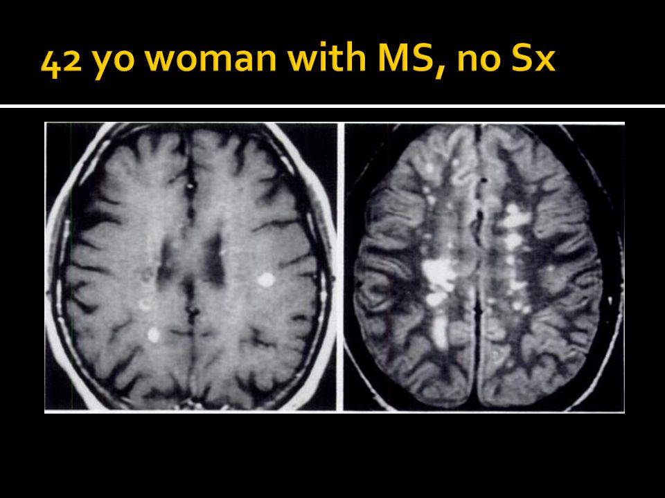 42 yo woman with MS, no Sx Figure 7 = Multiple sclerosis in 42 yo woman with clinically definite MS but no acute Sx.