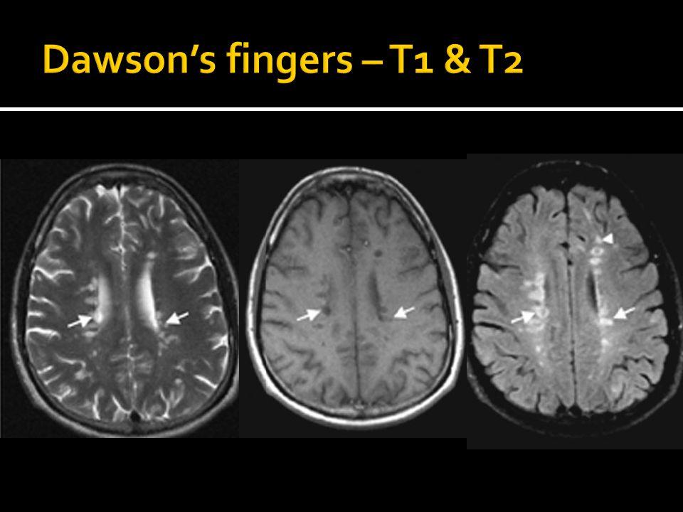 Dawson's fingers – T1 & T2