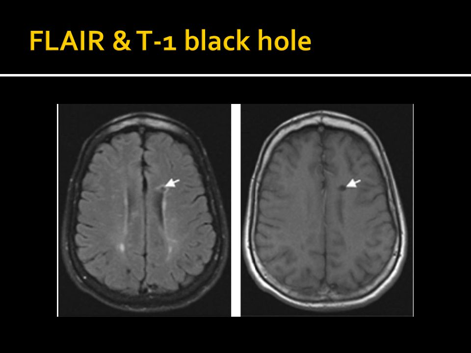 FLAIR & T-1 black hole Axial A FLAIR and B T1 weighted images showing a T1 black hole which is mixed hypo-hyperintense on FLAIR.