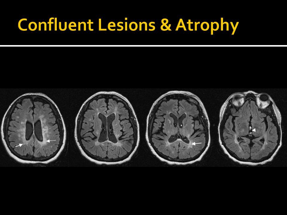 Confluent Lesions & Atrophy