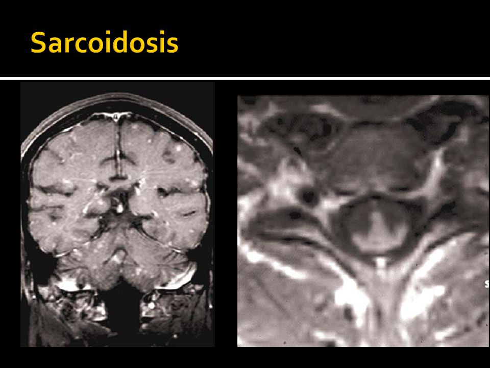 Sarcoidosis MRI of a patient with sarcoidosis.