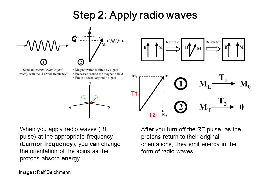 Step 2: Apply radio waves
