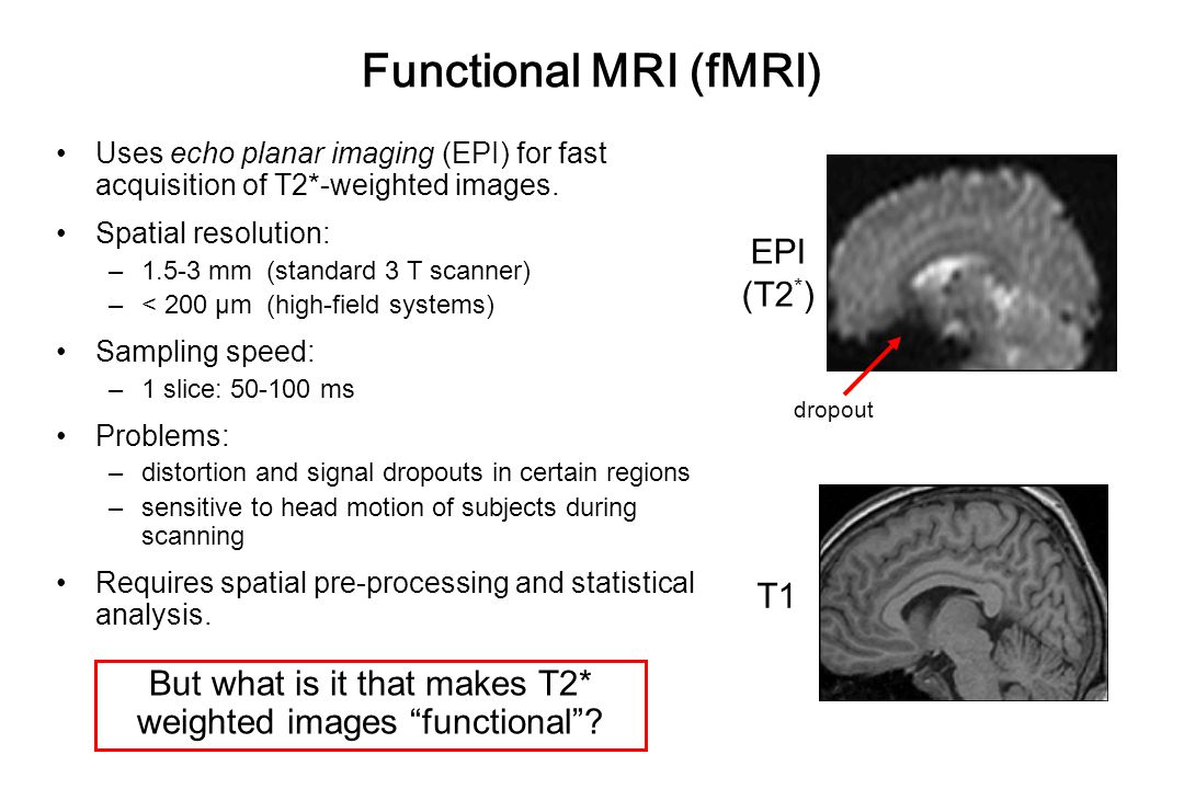 But what is it that makes T2* weighted images functional