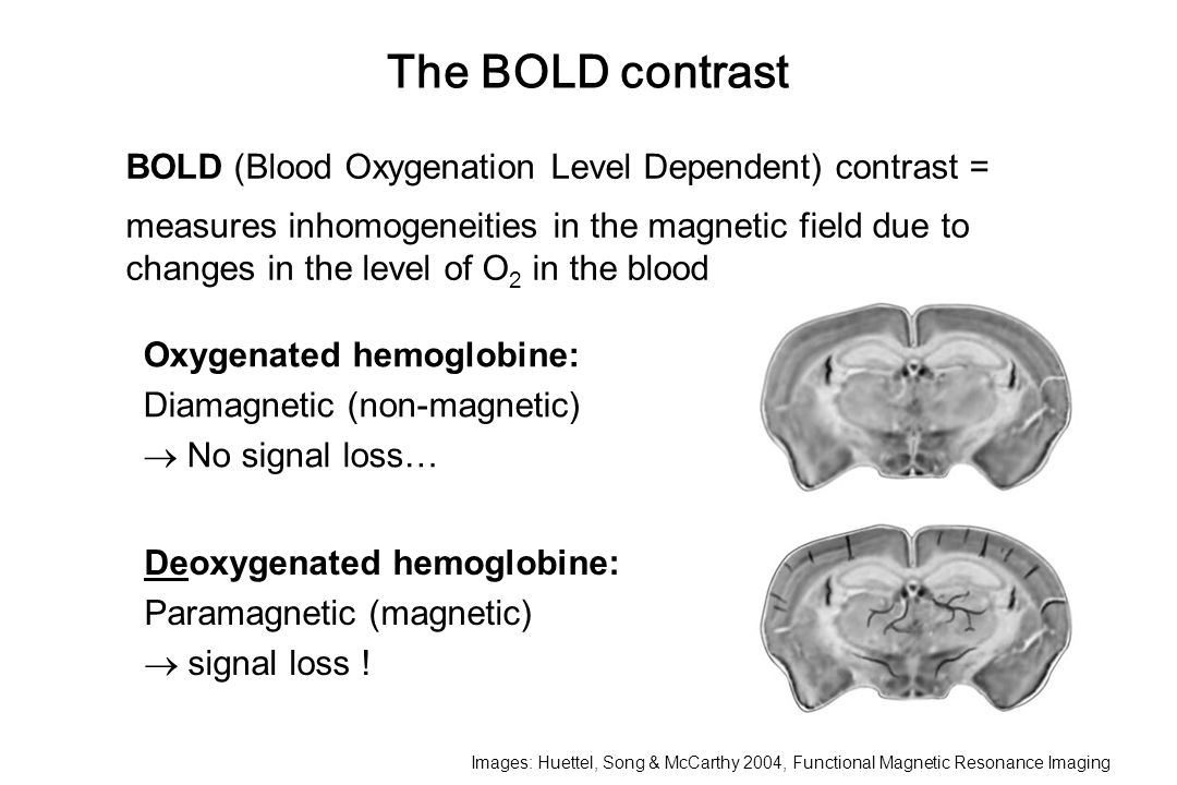 The BOLD contrast BOLD (Blood Oxygenation Level Dependent) contrast =