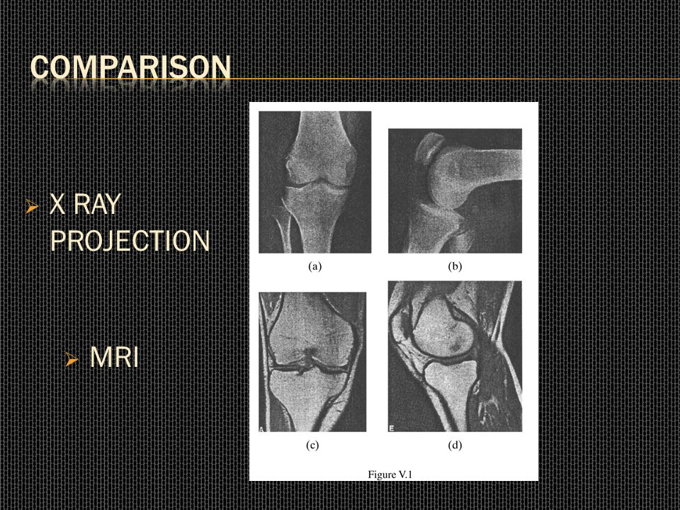 Comparison X RAY PROJECTION MRI