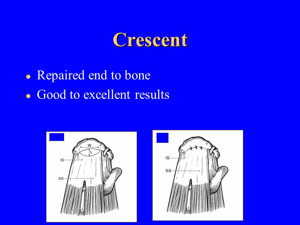 Crescent Repaired end to bone Good to excellent results