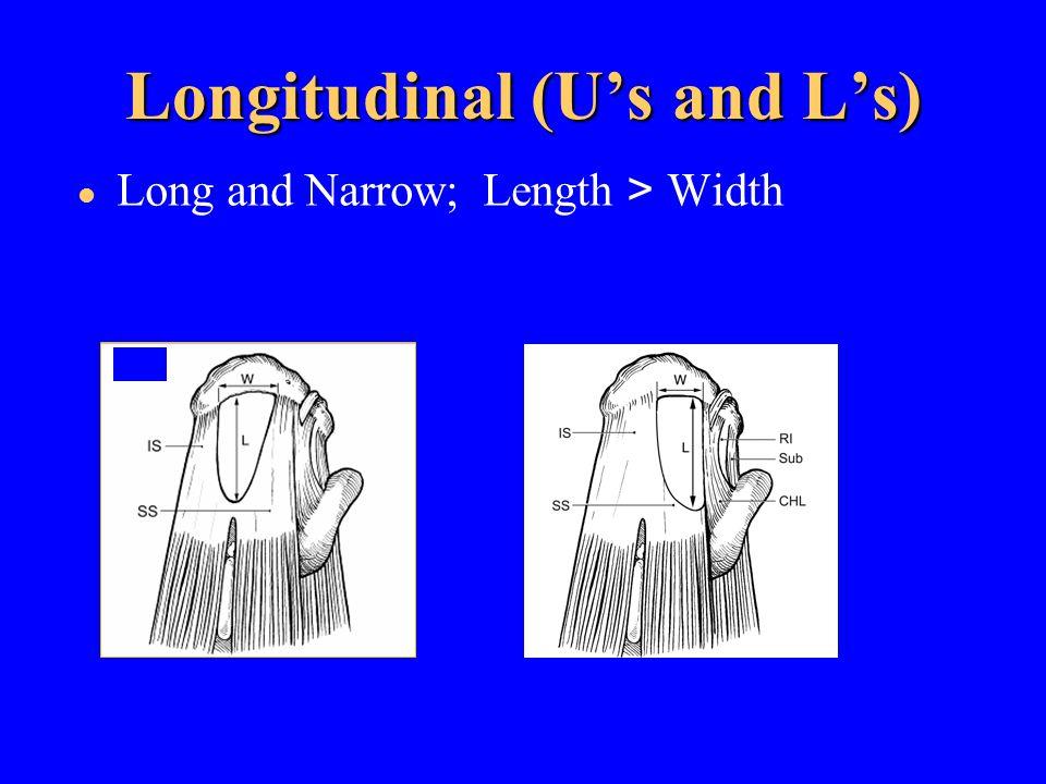 Longitudinal (U's and L's)