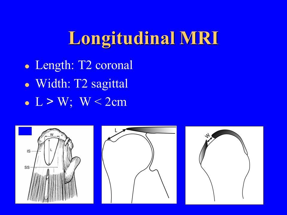 Longitudinal MRI Length: T2 coronal Width: T2 sagittal