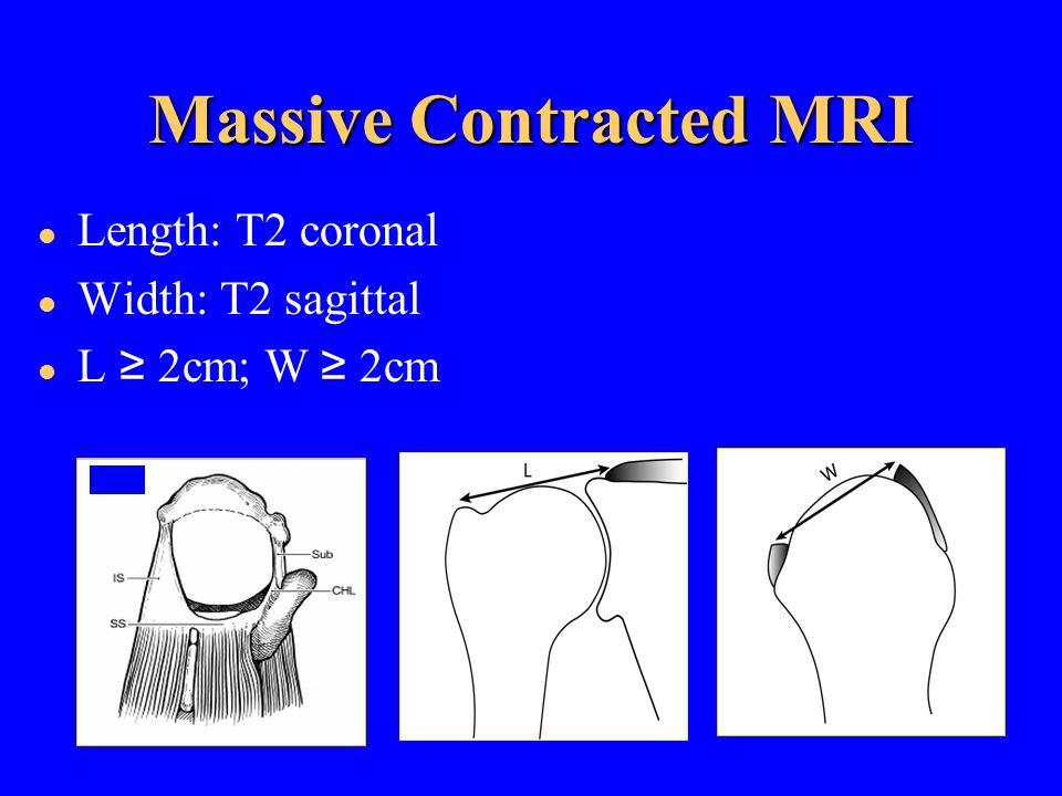 Massive Contracted MRI