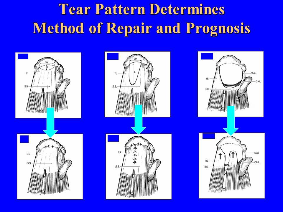 Tear Pattern Determines Method of Repair and Prognosis