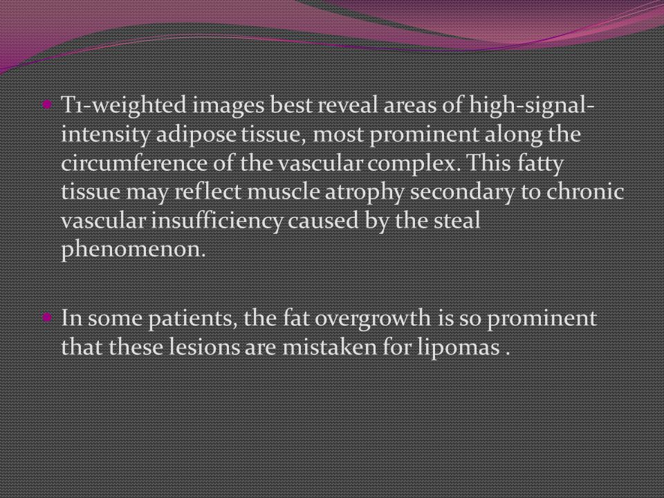 T1-weighted images best reveal areas of high-signal-intensity adipose tissue, most prominent along the circumference of the vascular complex. This fatty tissue may reflect muscle atrophy secondary to chronic vascular insufficiency caused by the steal phenomenon.
