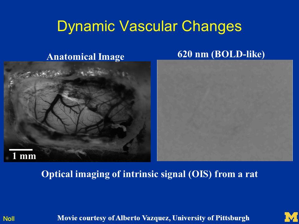 Dynamic Vascular Changes