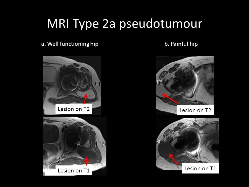 MRI Type 2a pseudotumour