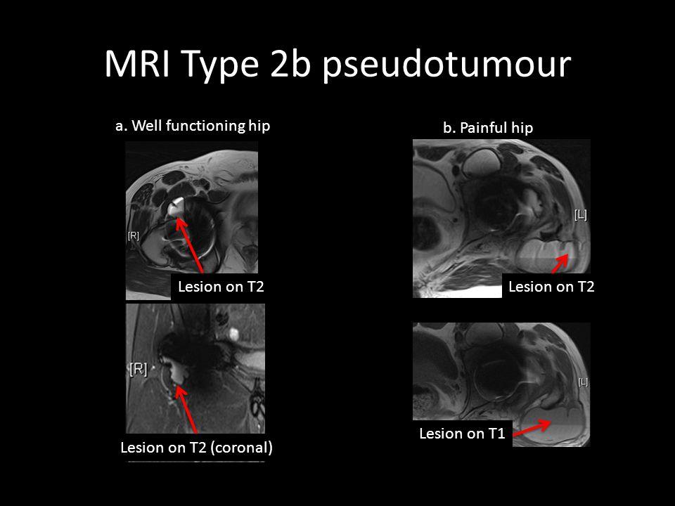MRI Type 2b pseudotumour