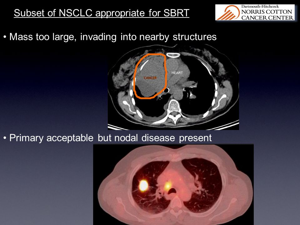 Subset of NSCLC appropriate for SBRT