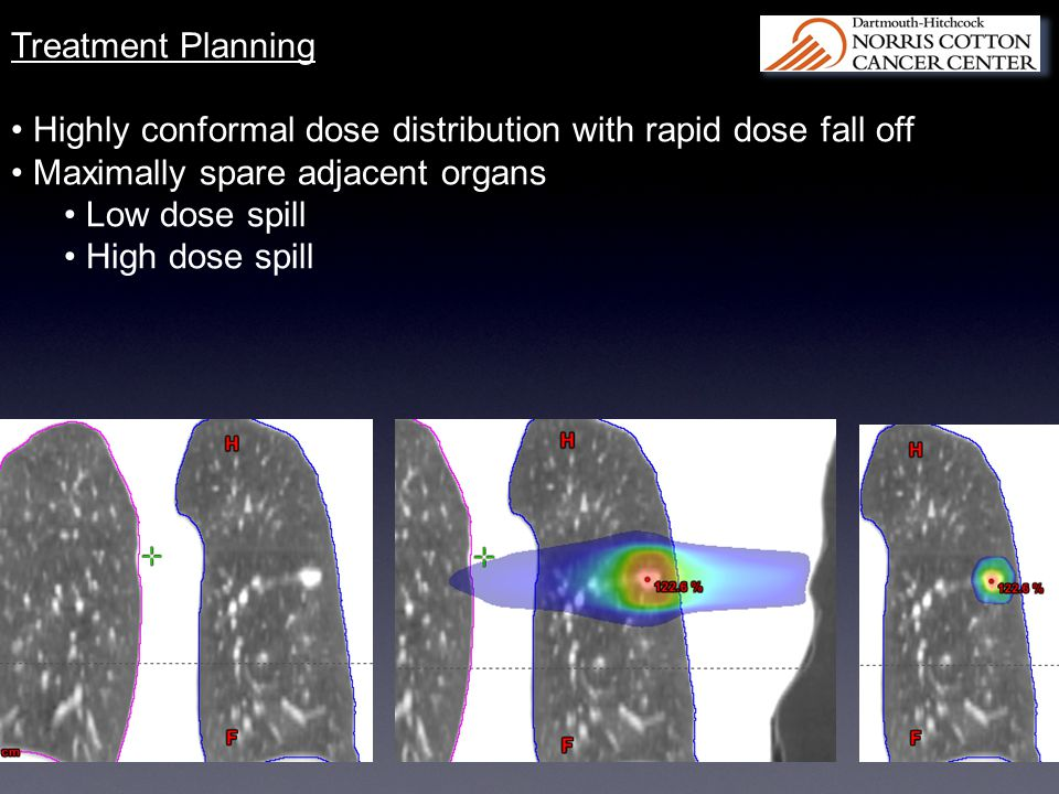 Treatment Planning Highly conformal dose distribution with rapid dose fall off. Maximally spare adjacent organs.