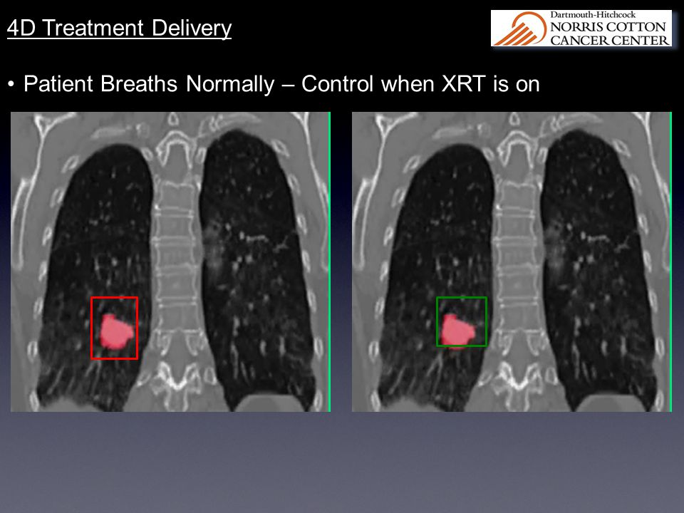 4D Treatment Delivery Patient Breaths Normally – Control when XRT is on