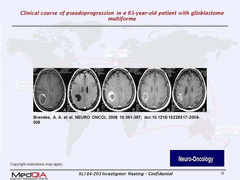 Clinical course of pseudoprogression in a 65-year-old patient with glioblastoma multiforme