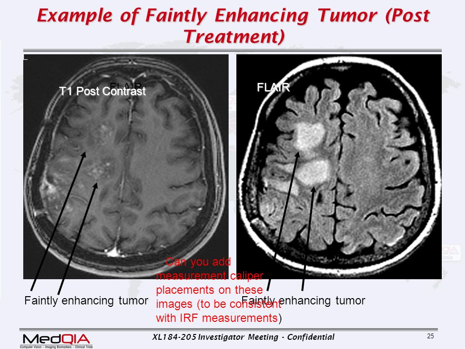 Example of Faintly Enhancing Tumor (Post Treatment)