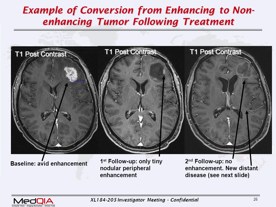 Example of Conversion from Enhancing to Non-enhancing Tumor Following Treatment