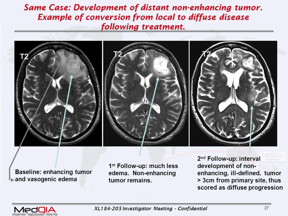 Same Case: Development of distant non-enhancing tumor