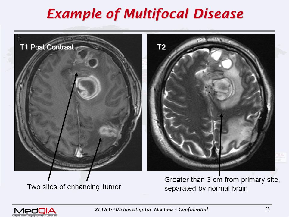 Example of Multifocal Disease